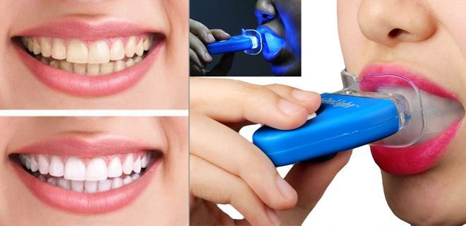 Buy Teeth Whitener online